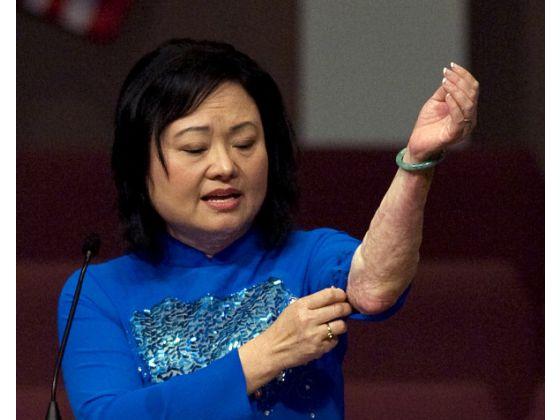 Kim Phuc toont de littekens op haar arm die ze opliep bij een napalm-bombardement op 8 juni 1972